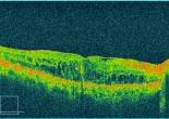 OCT diabetic macular edema