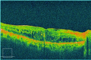 OCT diabetic macular edema
