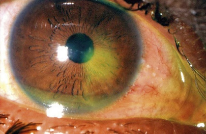 Corneal abrasion as stained with fluorescein (yellow)