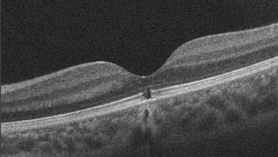 OCT of Solar Retinopathy